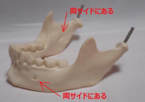 根管治療体験⑦口腔外科にて下唇の腫れや痺れの原因は歯槽骨炎と判明