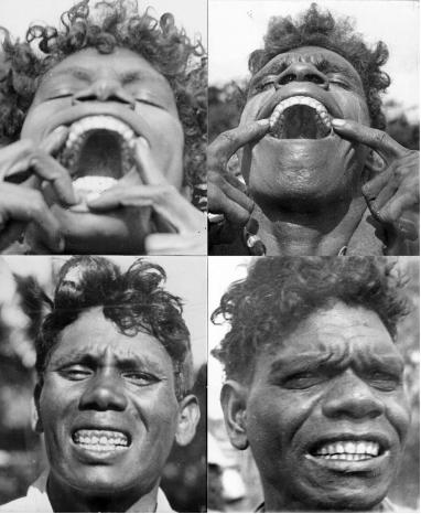 子供の歯並びが悪くなる真の原因。骨格的な不正咬合の予防は母親にかかっている