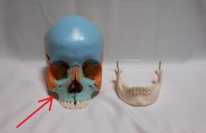 骨格が原因の鼻詰まりは子供の時の成長で決まる。口呼吸が招く脳への悪影響。